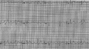 crm-04-03-1160-f1